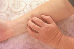 Cara mengatasi gatal badan